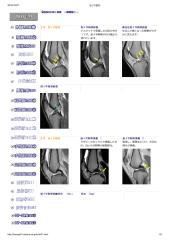 膝関節症例.pdf